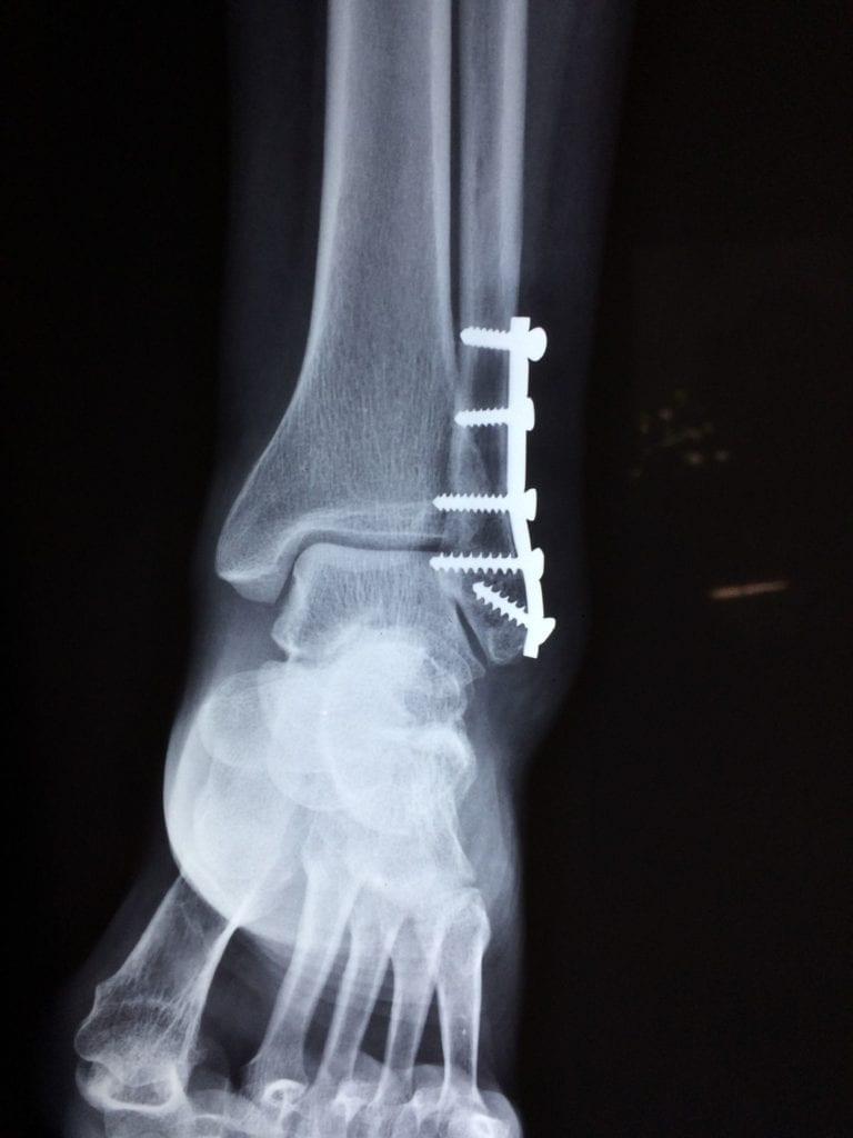 rentgen zlomený kotník